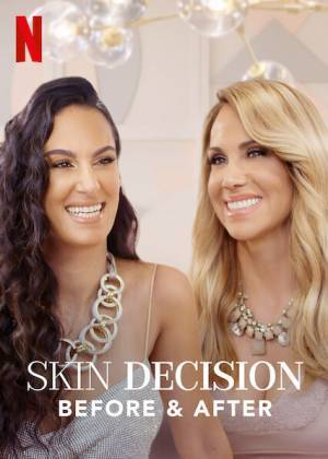 Skin Decision: Before and After (2020– )